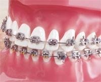 Typodonts