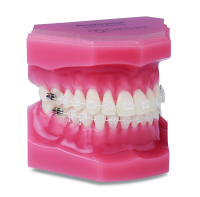 OFFERS FEBRUARI ORTHO FORUM MEMBERS ONLY